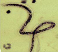 Come si combattono i nematodi